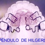 Imagen de péndulo Hilgers en Tecnodent Bilbao